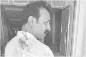 Photos : శ్రీలంక పేలుళ్లలో గాయపడ్డ ఐదుగురు టీడీపీ సభ్యులు